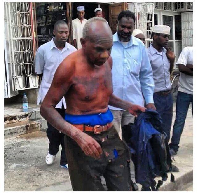 Padri Joseph Magamba amemwagiwa acid maeneo ya Sunshine Internet Cafe hapo Mlandege, mjini Zanzibar.